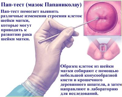 Цитологический скрининг опухолевой патологии шейки матки