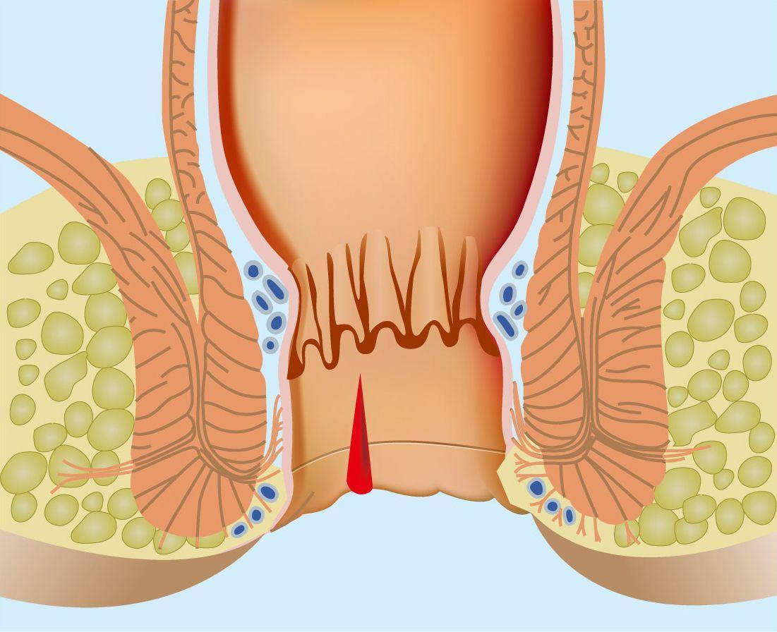 Тріщини прямої кишки: симптоми і лікування